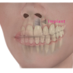 Dental Implants-thumbnail