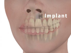 implant-face