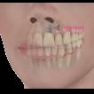 Dental Implants-thumbnail